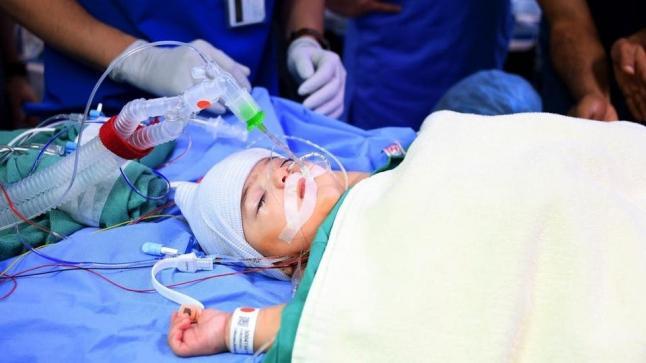 نجاح عملية فصل التوأم السيامي الليبي داخل مستشفى الملك عبد الله للأطفال
